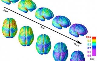 teenage-brain